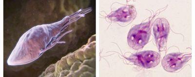Giardiasis - การติดเชื้อที่ลำไส้เล็กและเรื้อรัง
